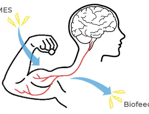 Biofeedback or Neuromuscular Stimulation?