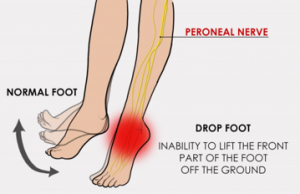 Peroneal nerve and drop foot