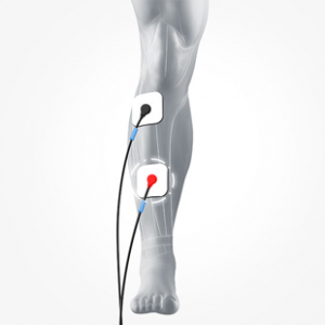 Electrode placement for biofeedback rehab for drop foot