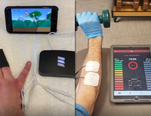 Biofeedback for Occupational & Hand Therapy: mTrigger Puts the Fun in Function