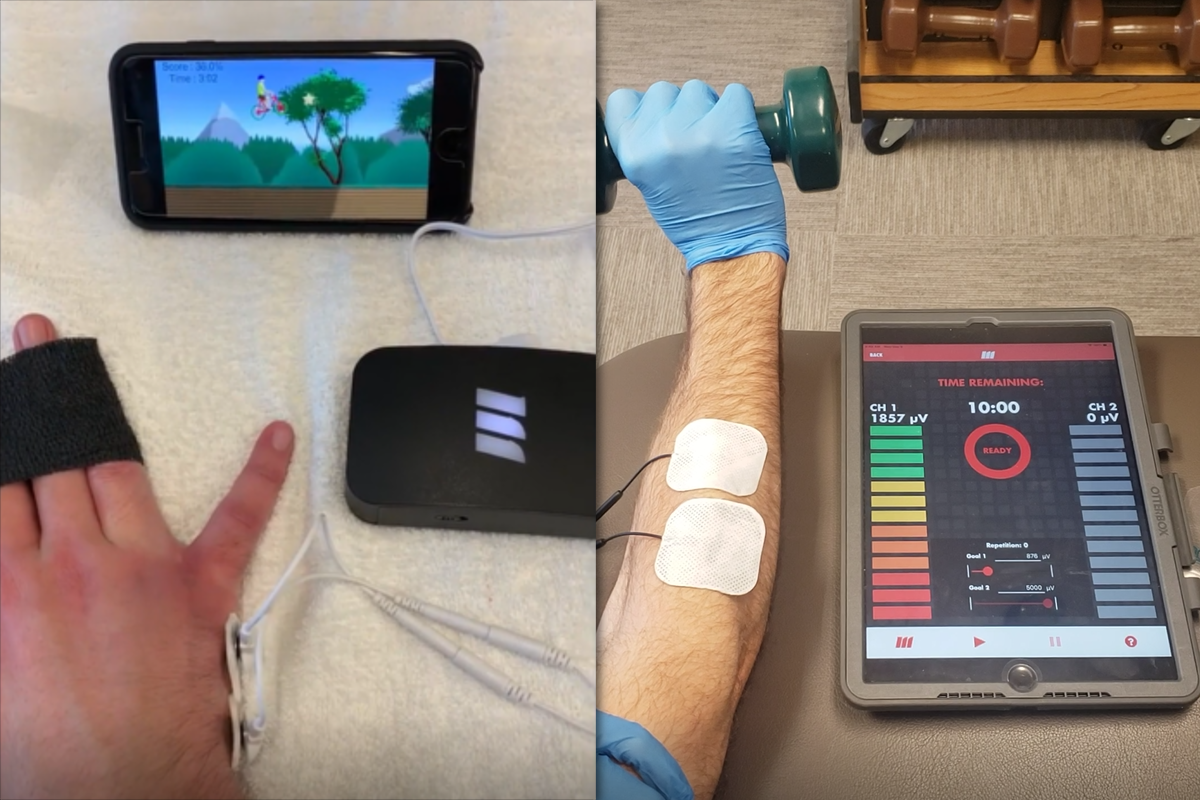 sEMG biofeedback of the hand and forearm with mobile app display