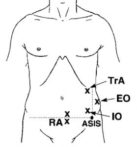 Core motor points